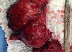 thyroidectomy specimen-02