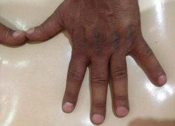 thyroidectomy specimen-04