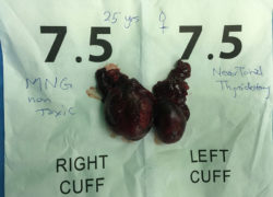 thyroidectomy specimen-05
