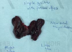 thyroidectomy specimen-06