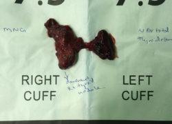 thyroidectomy specimen-08