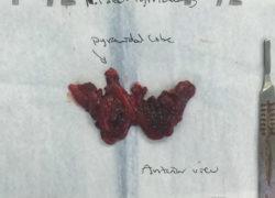 thyroidectomy specimen-09