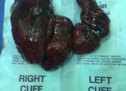 thyroidectomy specimen-11