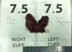 thyroidectomy specimen-12