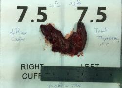 thyroidectomy specimen-13