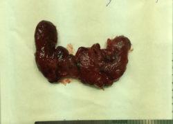 thyroidectomy specimen-15