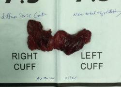 thyroidectomy specimen-19