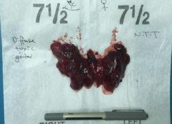 thyroidectomy specimen-23