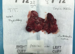 thyroidectomy specimen-25