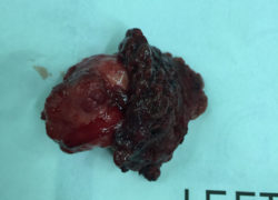 thyroidectomy specimen-02-2