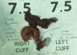 thyroidectomy specimen-02-4