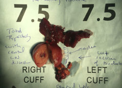 thyroidectomy specimen-02-5