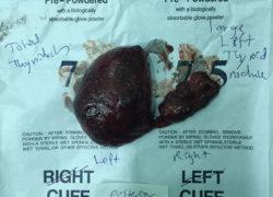 thyroidectomy specimen-9-5-2017-02
