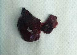 thyroidectomy specimen-9-5-2017-03