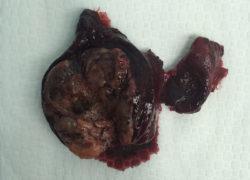thyroidectomy specimen-9-5-2017-04