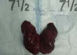 thyroidectomy specimen-9-5-2017-05