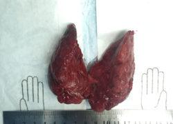 thyroidectomy specimen-9-5-2017-06