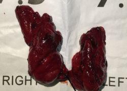 thyroidectomy specimen-20-12-2017-05