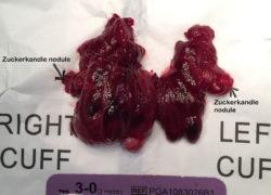 thyroidectomy specimen-20-12-2017-06